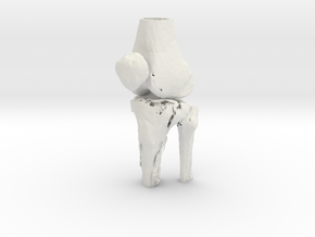 Knee - Proximal Tibia Fracture (Tibial Plateau) in White Natural Versatile Plastic