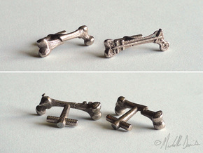 Femur Fracture and Fixation Cufflinks in Polished Bronzed Silver Steel
