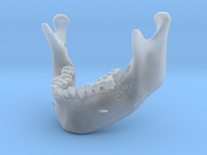 Subject 2a | Mandible (Before IMDO) in Frosted Ultra Detail