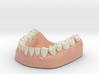 3D Teeth lower 3d printed